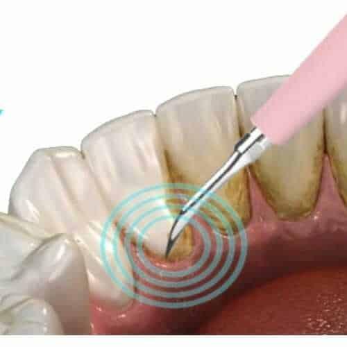 ultrazvučni-čistač-za-zube